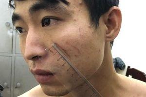 Hé lộ nguyên nhân nữ sinh đại học bị bạn trai sát hại trong nhà nghỉ ở Thanh Hóa