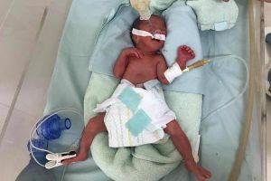 Không nhìn thấy đường, bác sĩ vượt 500km cứu bé sơ sinh nhỏ như cốc nước