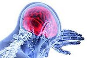 Dùng hạt nano chứa kháng thể để giảm phù nề trong chấn thương sọ não