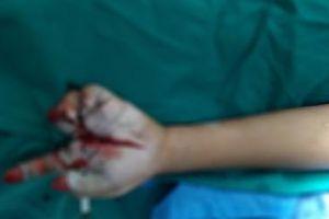 Thêm một bé trai chấn thương do pháo nổ