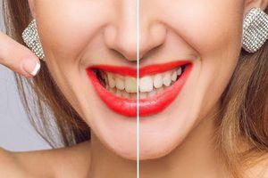 Mẹo nhỏ giúp bạn giải quyết nỗi lo răng ố vàng
