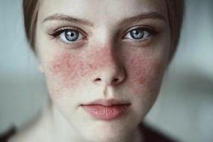 Bệnh lupus ban đỏ nguy hiểm thế nào?