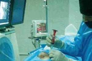 Đau giật nửa mặt đến mức 'chết đi sống lại', chỉ cần 30 phút điều trị