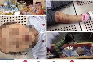 Khởi tố vụ án bạo hành dã man khiến bé gái 3 tuổi tử vong ở Hà Nội