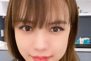 Nghi vấn bạn gái Sơn Tùng M-TP 'dao kéo' khi lộ mặt sưng vù