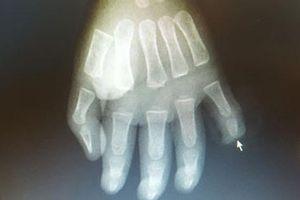 Trẻ 17 tháng tuổi bị cứa đứt rời đốt ngón tay do nghịch dao từ sự bất cẩn của cha mẹ