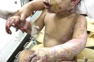 Quặn lòng với hình ảnh 2 bé trai bỏng nặng trong vụ ném bom xăng