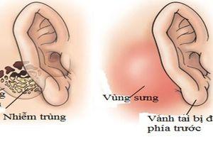 Tai có mùi hôi thối - triệu chứng của nhiều bệnh lý nguy hiểm