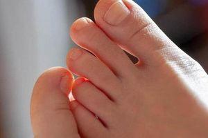 Bàn chân của người nhiều bệnh tật, tuổi thọ kém luôn có chung 7 dấu hiệu nhỏ này: Cả đàn ông lẫn phụ nữ đều nên kiểm tra ngay