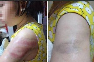 Sở GD&ĐT Nam Định đề nghị xử lý nghiêm cô giáo đánh tím tay học sinh