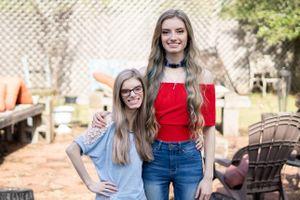 Cặp sinh đôi 'có một không hai' trên thế giới vì 1 người mắc bệnh hiếm