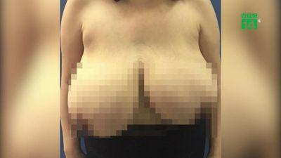 Ngực trái to gấp 5 lần ngực phải, người phụ nữ khốn khổ ngủ nghiêng