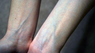 Cơ thể nổi gân xanh cảnh báo vấn đề sức khỏe gì?