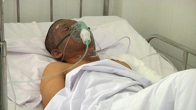 Tình trạng sức khỏe của tài xế xe bồn chở xăng bị lật cháy 19 ngôi nhà, 6 người tử vong