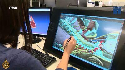 Công nghệ in 3D tạo ra nội tạng con người