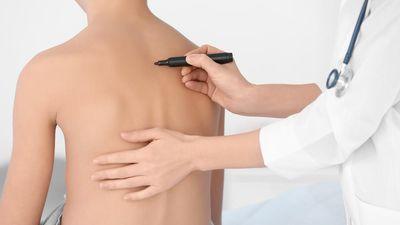 Mô phỏng phương pháp nội soi chữa vẹo cột sống