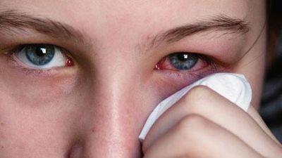 Sai lầm khiến người đau mắt đỏ có thể bị mù