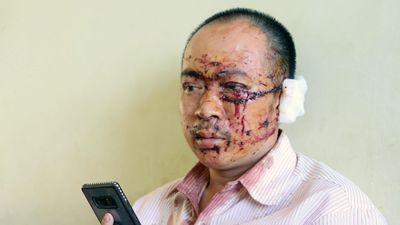 Nạn nhân tai nạn xe Phương Trang: Ai cũng la hét, người văng khắp nơi