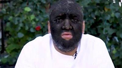Clip: 'Chuyện lạ' người đàn ông có 98% cơ thể bị lông che phủ