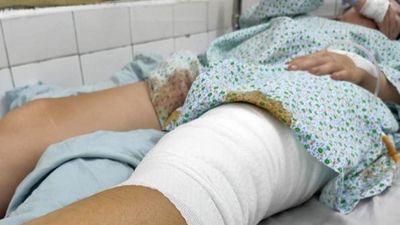 Nhập khẩu da người để điều trị cho nạn nhân bỏng