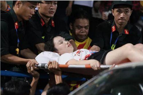 Công an truy tìm thủ phạm bắn pháo sáng làm nữ CĐV trọng thương