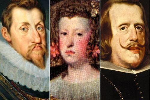 Vì sao ông hoàng bà chúa xưa thường dị tật trên mặt?