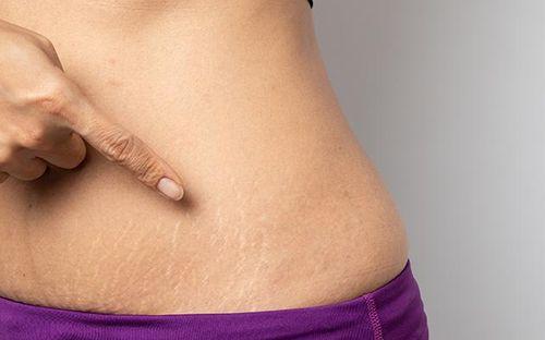 Rạn da vùng bụng - nỗi sợ của tất cả chị em, làm thế nào để ngăn ngừa tình trạng này?