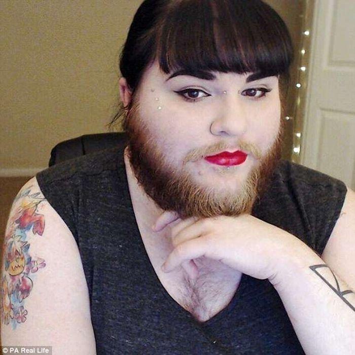 Mắc bệnh lạ, cô gái trẻ bị mọc râu lởm chởm khắp mặt - 2Sao