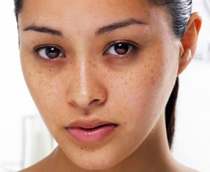 5 dấu hiệu nhận biết làn da của bạn đang bị hư tổn