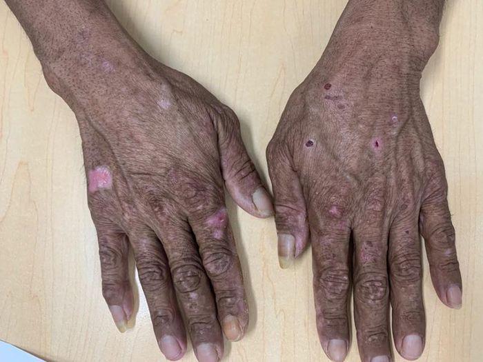 Khám da liễu, phát hiện bị nhiễm độc kim loại