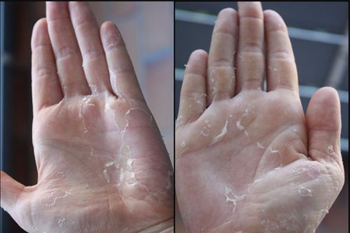 Nhận biết tình trạng sức khỏe tiềm ẩn của bạn qua 10 dấu hiệu trên bàn tay.2